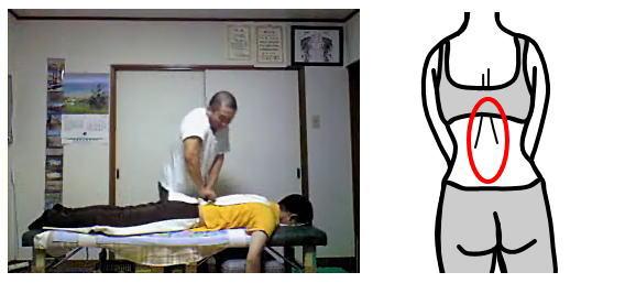腰痛産後骨盤矯正の整体01