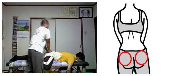 産後骨盤矯正腰痛の整体02