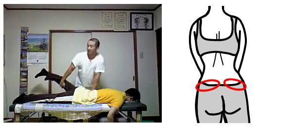 産後骨盤矯正腰痛の整体05