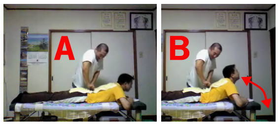 産後骨盤矯正腰痛の整体10
