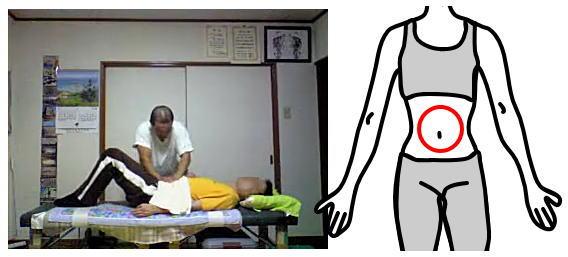 産後骨盤矯正腰痛の整体12