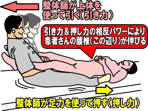 腰の牽引(腰痛骨盤矯正向け整体技)